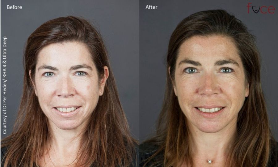Chin Filler Treatment Before & After