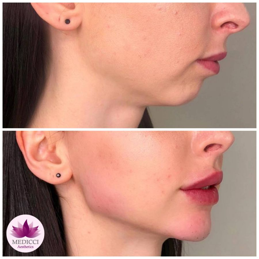 Jawline Filler Treatment Before & After