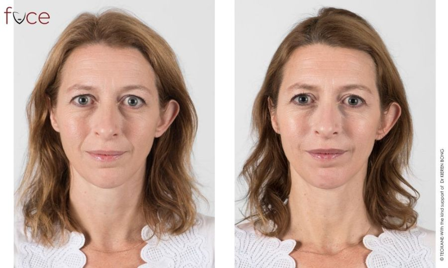 Nasolabial Folds Filler Treatment