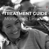 Marionette Lines Treatment Guide