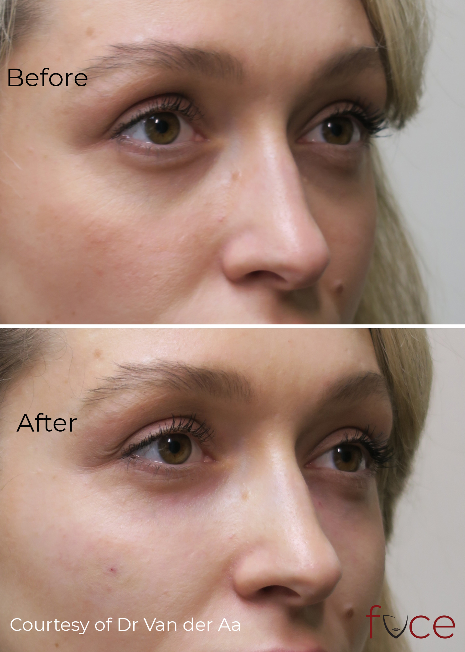 Tear Troughs: Before and After comparison.