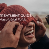 nasolabial fold treatment guide