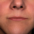 Lip Filler Treatment Stage 1
