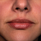 Lip Filler Treatment Stage 4