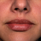 Lip Filler Treatment Stage 5